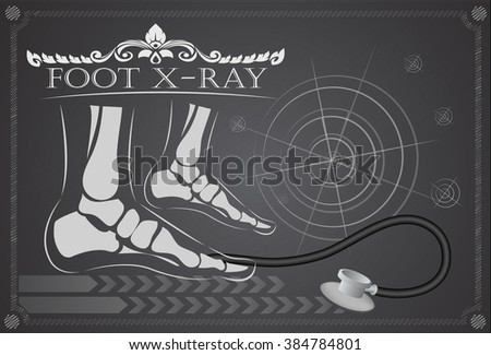 Foot x-ray - stock vector
