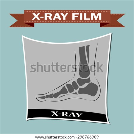 Foot x-ray. Vector  - stock vector