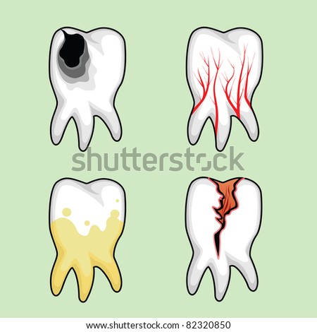 Four teeth affected by various diseases