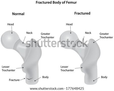 Fractured Body of Femur - stock vector