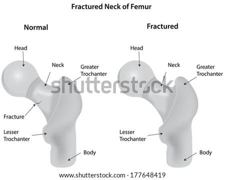 Fractured Neck of Femur - stock vector