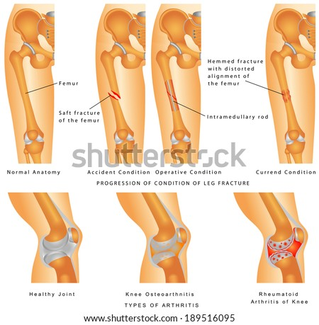 Fractures of Femur. Hemmed fracture with distorted alignment of the femur. Fixation of Femur Fracture with Placement of Intramedullary Rod. Types of Arthritis - Osteoarthritis, Rheumatoid Arthritis - stock vector