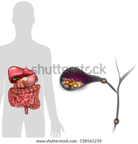 Gallstones in the Gallbladder and human silhouette with anatomy of internal organs, bright detailed illustration.