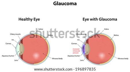 Glaucoma - stock vector