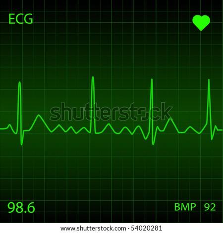 Green Heart Monitor - stock vector