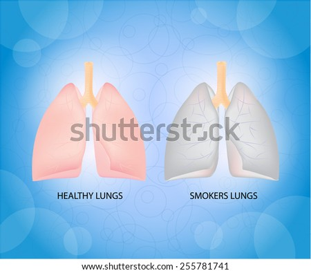 Health lungs and smoker lungs. - stock vector