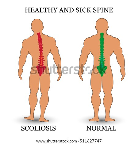is scoliosis a medical condition