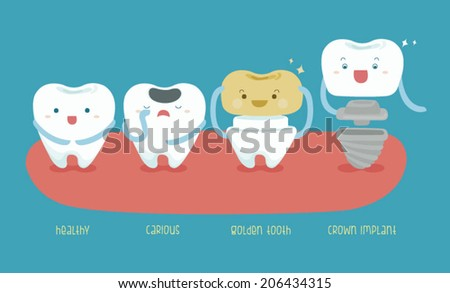 Healthy tooth ,carious ,golden tooth and crown implant of dental - stock vector