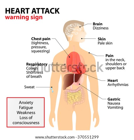 Heart Attack Signs and Symptoms. Human silhouette with highlighted internal organs. warning sign - stock vector