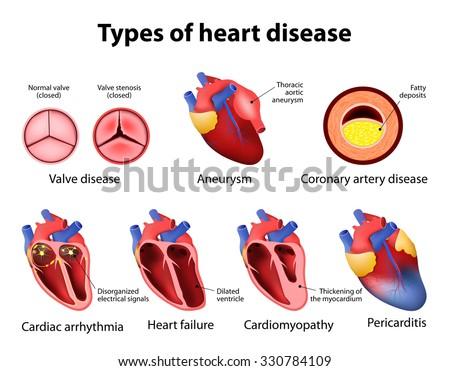 heart disease: valve disease, aneurysm, coronary artery disease, cardiac arrhythmia, heart failture, cardiomyopathy and pericarditis - stock vector
