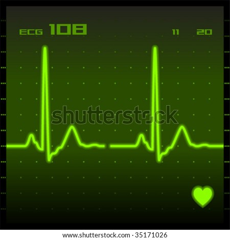 Heart monitor screen showing electrocardiogram signal. Vector illustration.
