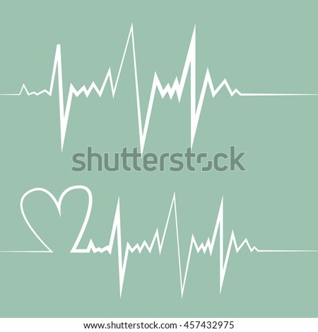 an analysis of the angina pectoris on the human heart The chest pain happens because there isn't enough blood flowing to part of your  heart it's a symptom of heart disease, and it's occurs when.