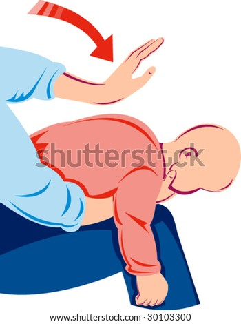 Heimlich maneuver on infant - stock vector