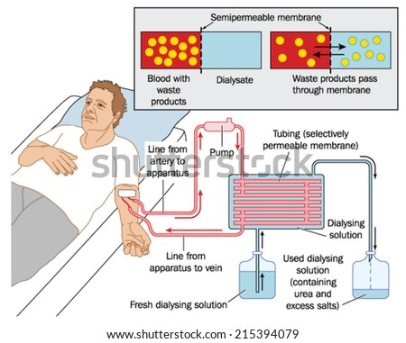 How blood dialysis works, showing a patient connected to a blood pump, semipermeable membrane and dialysing solution. Created in Adobe Illustrator.  EPS 10. - stock vector