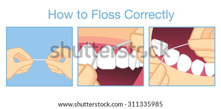 How to floss correctly for cleaning teeth - stock vector