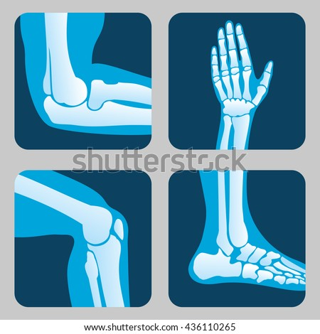Human joints, knee joint, elbow joint, ankle joint, wrist. Medical orthopedic vector of set. Anatomy orthopedic human joint and illustration icon leg and hand joint - stock vector