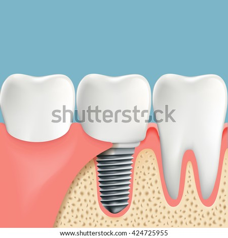 Human teeth and Dental implant. Anatomy of the oral cavity. Stock vector illustration. - stock vector