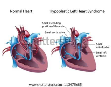 Hypoplastic left heart syndrome - stock vector
