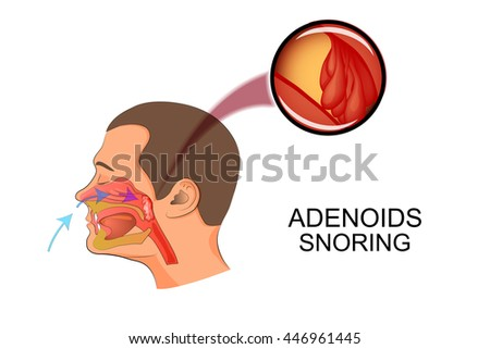 illustration adenoids as causes of snoring - stock vector