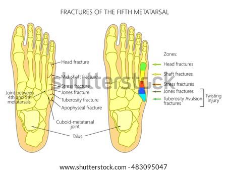 Illustration    Diagram       5th    Metatarsal Fractures Types Stock Vector 483095047  Shutterstock