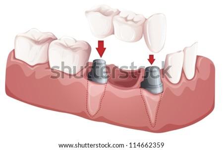 Illustration of a dental bridge - stock vector