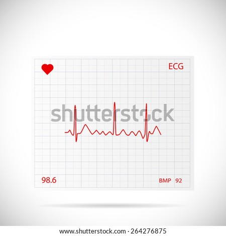Illustration of a heart cardiogram wave on a piece of paper. - stock vector