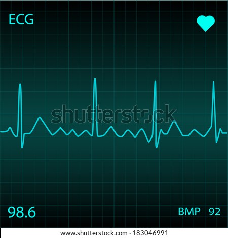 Illustration of a medical ECG monitor. - stock vector