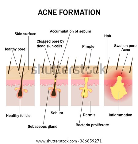 Illustration of acne formation on the human skin
