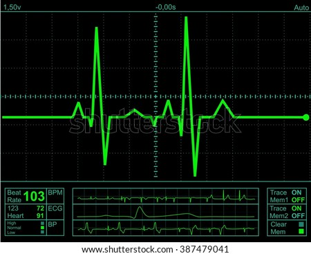 Illustration of electrical activity of the human heart rate, pulse meter. Electrocardiogram Monitor Display