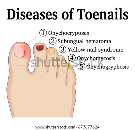 Illustration Of Five Different Nail Diseases On The Toenails Such As Onychocryptosis Onychomycosis