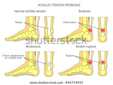Illustration of Skeletal ankles (side view and back view) with normal and injured  Achilles tendon (tendinitis, tendinosis and torn). Used: Gradient, transparence, blend mode.