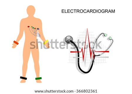 illustration of the electrocardiogram. the patient with electrodes on the chest. - stock vector