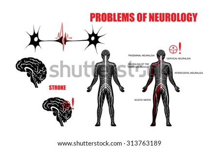 Illustration of the nervous system and neurological diseases. Brain, stroke, trigeminal neuralgia, cervical plexus neuralgia, neuralgia of the brachial plexus, intercostal neuralgia and sciatic nerve. - stock vector