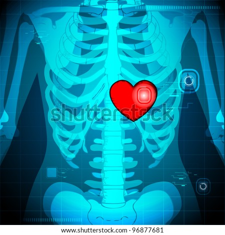 illustration of xray of human showing glowing heart behind rib - stock vector