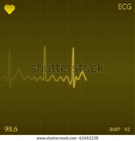 Image of a yellow heart monitor background. - stock vector