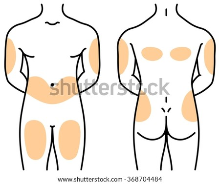 Printable Insulin Injection Sites Diagrams Abdomen Introduction To