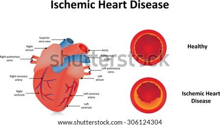 Ischemic heart disease em vetor stock 306124304 shutterstock ccuart Image collections