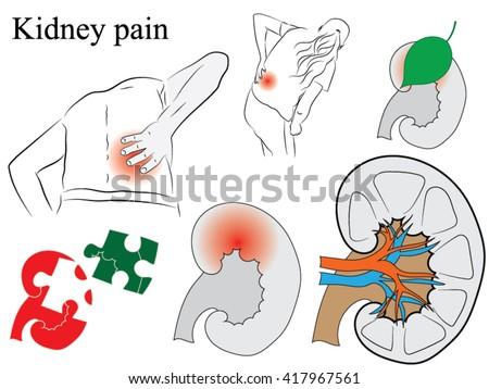 Kidney drawing