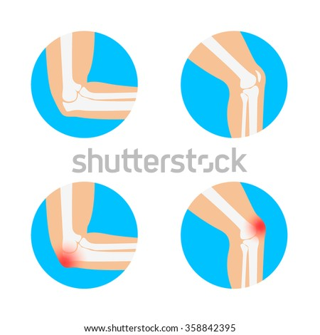 Knee and Elbow vector illustration. Elbow pain. Knee pain. Anatomy of knee and elbow.  - stock vector