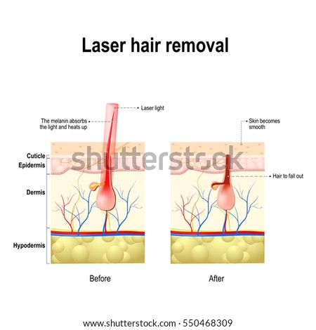 three stages acne formation human skin stock vector ... alopecia skin diagram dry skin diagram #15