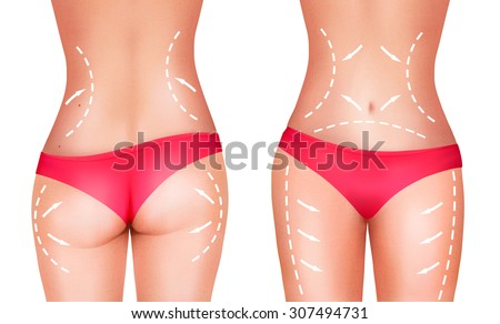Lines, showing surgery on female body. Vector. - stock vector