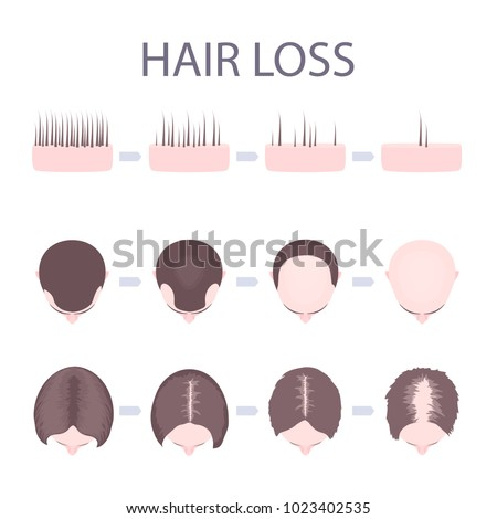 Male Pattern Baldness Stock Images Royalty Free Images