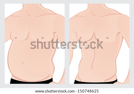 Male fat belly before and after the treatment. Vector illustration on a white background. File is not flattened. - stock vector
