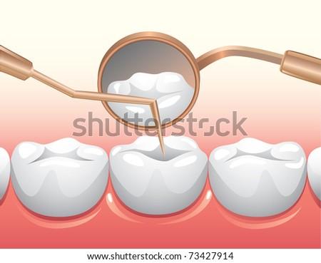 Medical Exam of teeth - stock vector
