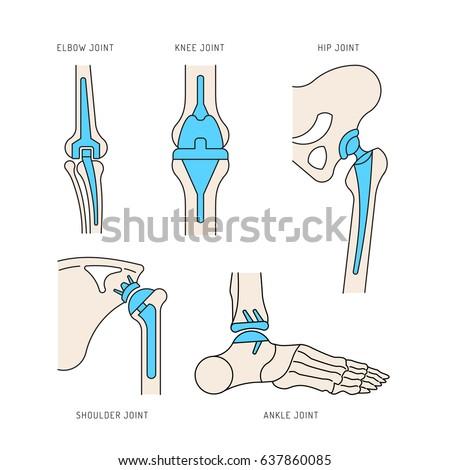 knee replacement stock vectors, images & vector art | shutterstock, Skeleton