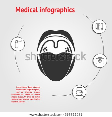 Medicine infographic template. Diseases of the throat and oral cavity with space for text - stock vector