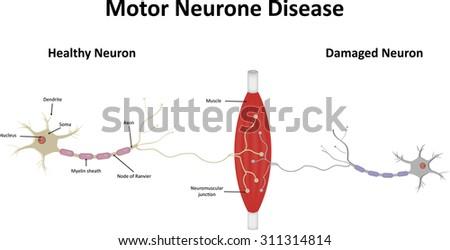 Motor neurone disease stock vector 311314814 shutterstock for Definition of motor neuron disease