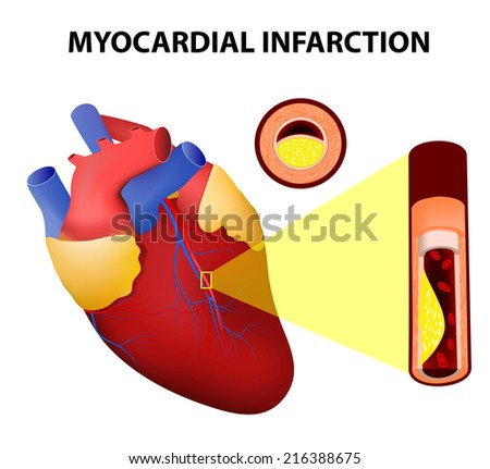 Myocardial infarction or Heart Attack - stock vector
