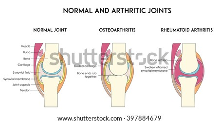 Normal and arthritic human joints. Types of arthritis. Minimal flat vector illustration for print or web - stock vector