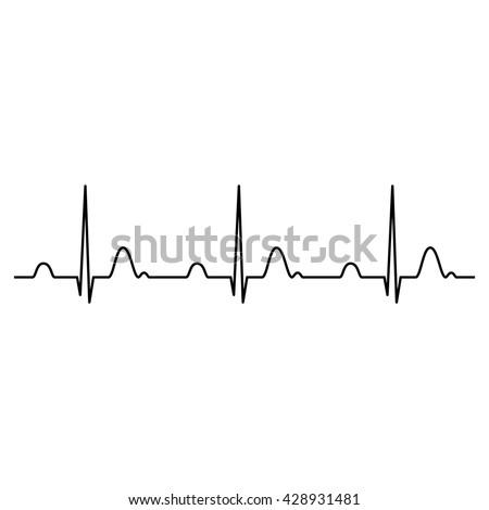 Normal ECG (Electrocardiogram) , heart rhythm ekg , black isolated vector Illustration - stock vector
